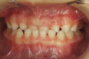 乳歯列の受け口(反対咬合)